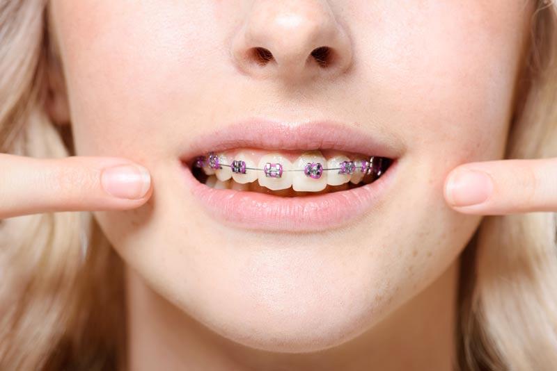 יישור שיניים בעזרת סמכים חיצוניים