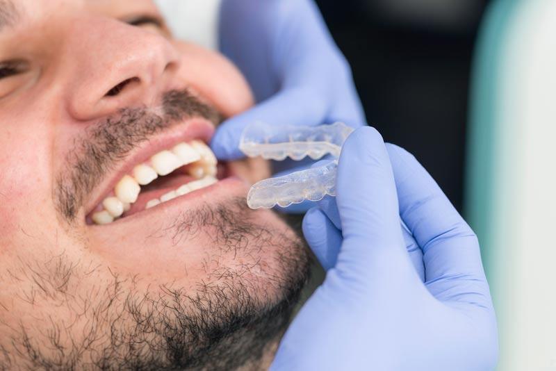 יישור שיניים בעזרת פלטה שקופה