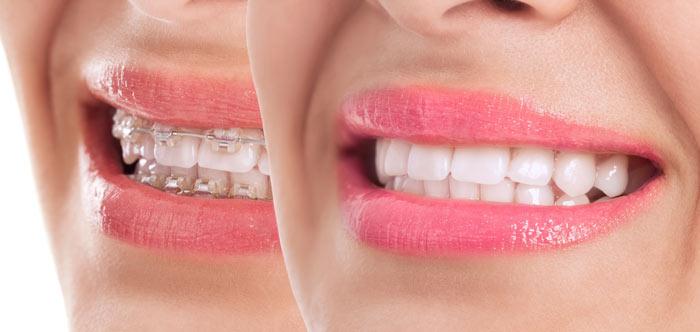 יישור שיניים בעזרת סמכים שקופים