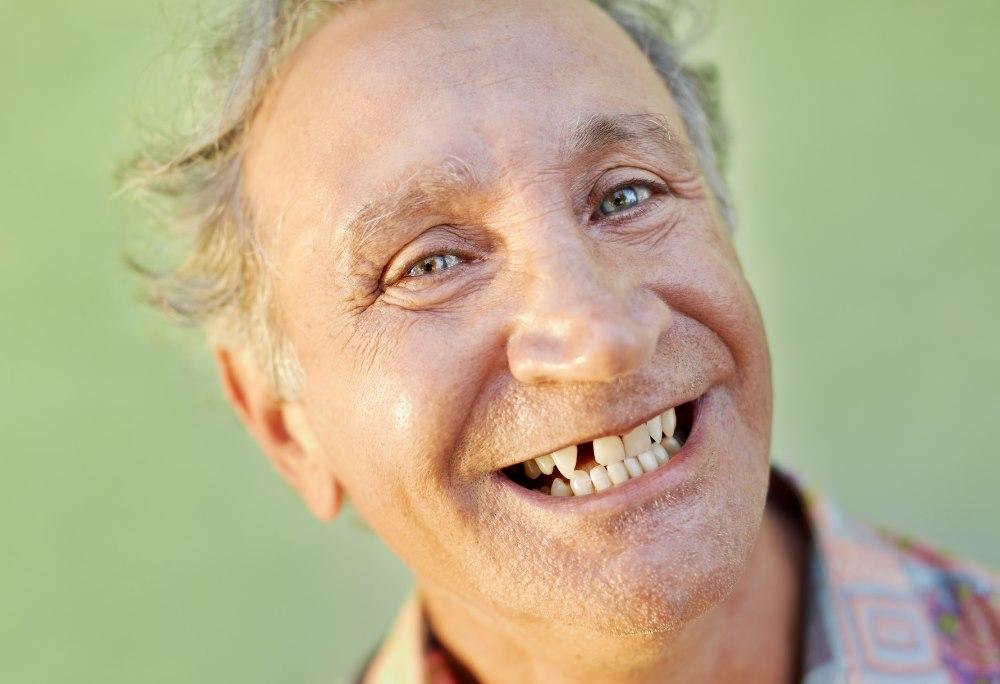 אובדן שיניים אצל מבוגרים