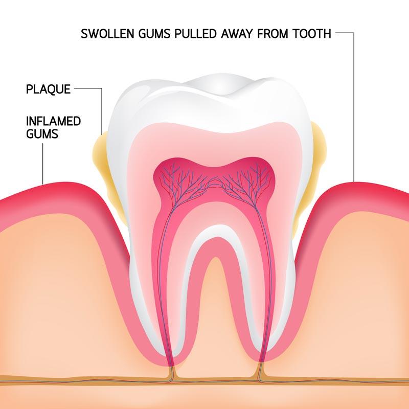 מבנה השיניים והחניכיים
