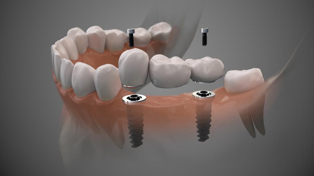 השתלת שיניים גל קליניק