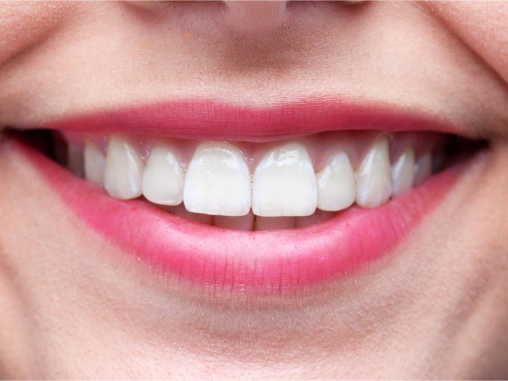 ציפוי למינייט לחיוך מושלם
